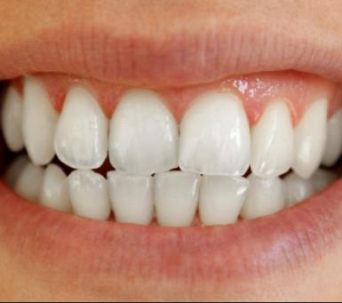 Nijanse boja zuba